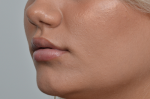 Fillers and Non-Surgical