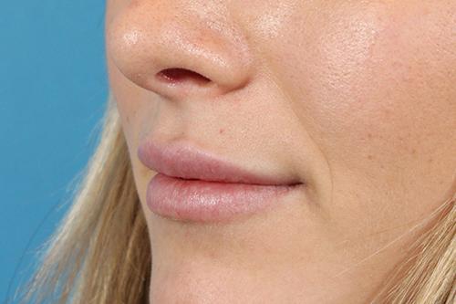 Lip Lifting and Augmentation
