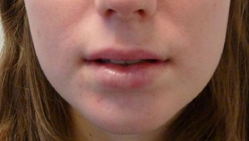 Lip Lifting and Augmentation