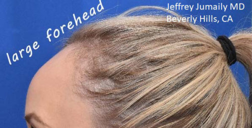 Forehead Reduction/Hairline Lowering
