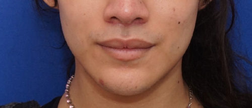 Jaw Contouring/V Line Jaw Surgery