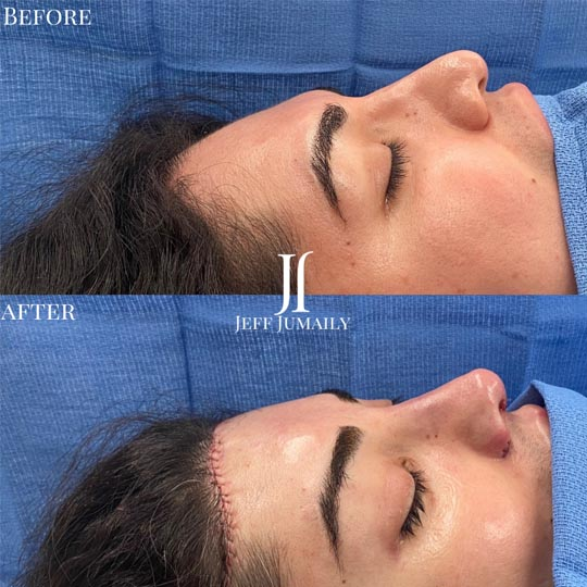 Patient Before and After Procedure